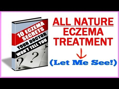 Eczema Treatment - How To Get Rid Of Eczema Naturally?
