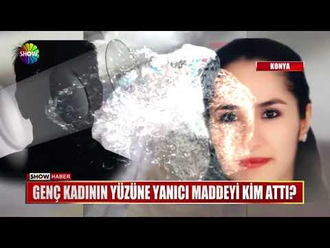 Genç kadının yüzüne yanıcı maddeyi kim attı?