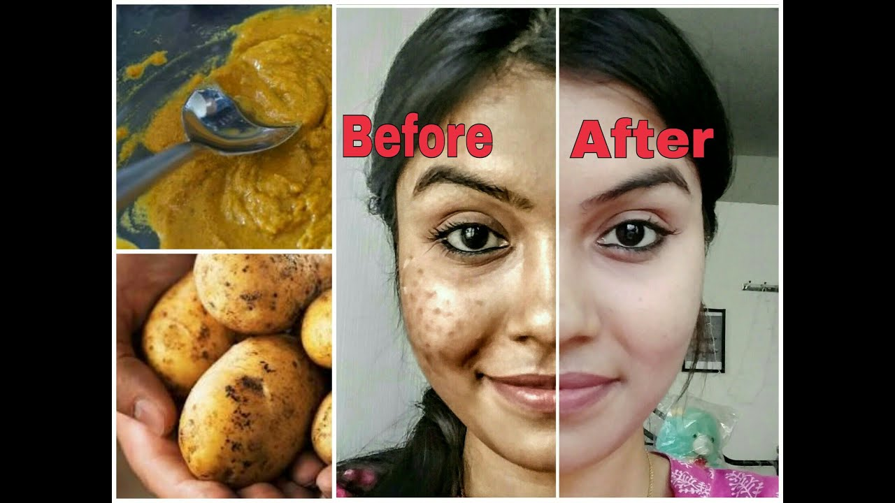 Remove dark spots Naturally  | Get rid of uneven skin tone