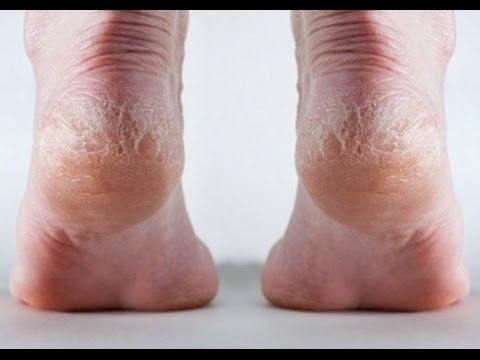 خلطة سحرية للتخلص من تشقق القدمين في أسرع وقت ممكن - مجربة