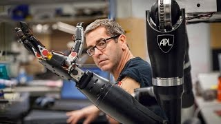 Will a robotic arm ever have the full functionality of a human limb?