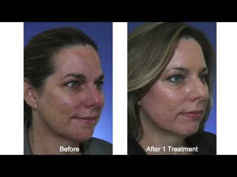 Acne Scar Treatment with Fractional CO2 Laser