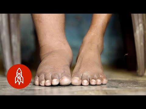 Racing to End Elephantiasis in India
