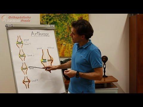 Arthrose, Teil 8: Operative Behandlungsmethoden bei Arthrose