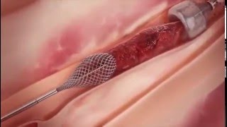 Удаление тромбов из артерии вакуумным методом.