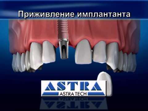 Видео как ставят зубы