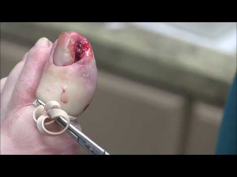 Infected Ingrown Toenail Removal With Pyogenic Granuloma