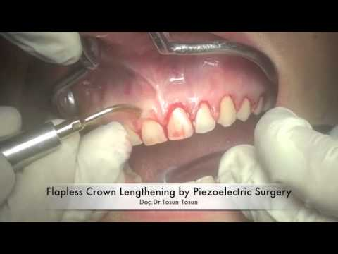 Flapless Crown Lengthening by Piezoelectric Surgery