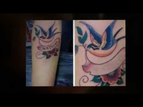 Get Rid Of Tattoo Naturally Download