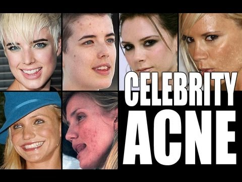CELEBRITIES WITH ACNE!!!!