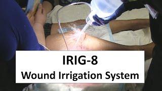 IRIG-8 Wound Irrigation System Trial