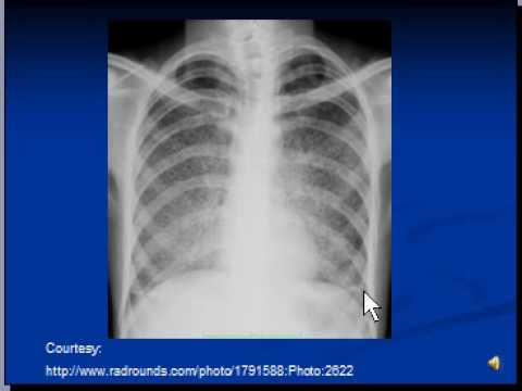 Chest x-ray interpretation -- Miliary Tuberculosis