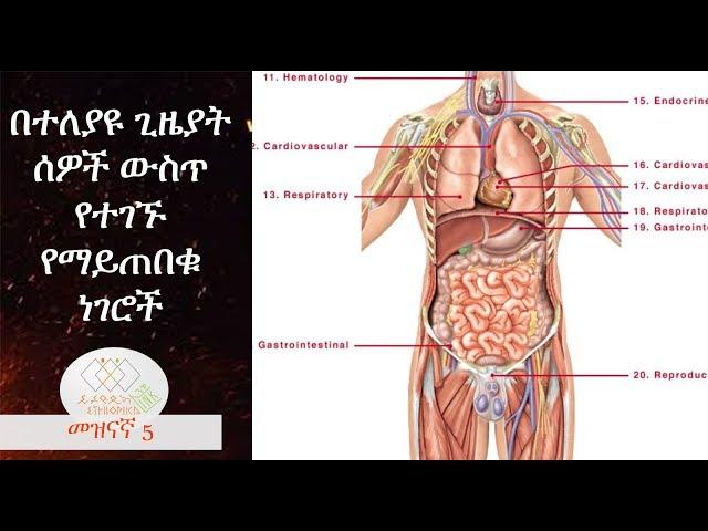 Weird things found in human body, EthiopikaLink