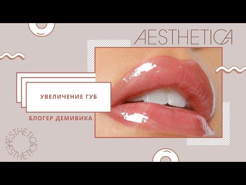 Увеличение губ | Блоггер Виктория Демидова | Ответы врача | Губы до и после |