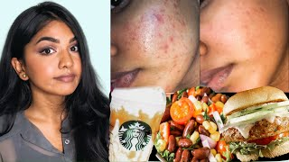 FOOD THAT TRIGGERS/INCREASES ACNE (pimples) || FOODS I AVOID