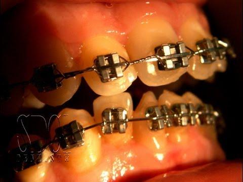 จัดฟัน ขั้นตอนจัดฟัน ลำดับจัดฟัน