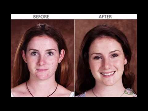 Best Acne Natural Treatment | Proven To Help Many Acne Sufferers