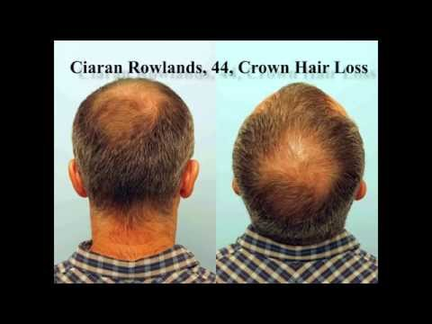 FUE Hair Transplant Result in the Crown: Ciaran Rowlands