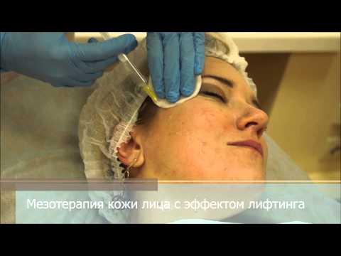 Мезотерапия лица с эффектом лифтинга
