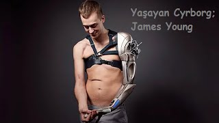 Yaşayan Cyborg: James Young