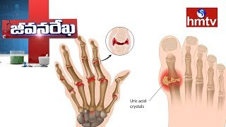 Dr.Jyothi About Arthritis Causes And Treatment    Homeocare Internationals   Jeevana Rekha   hmtv