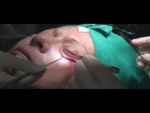 Lower Eyelid Eyelift / Blepharoplasty by Dr. Young