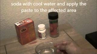 Bee and Insect Sting natural remedies/treatments - How to relieve your pain and swelling