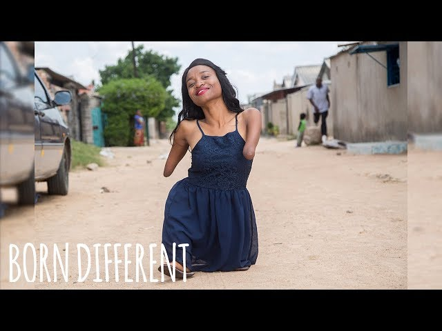 Living Without Hands And Knees | BORN DIFFERENT