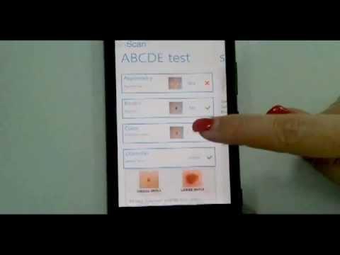 SkinScan mobile app demo