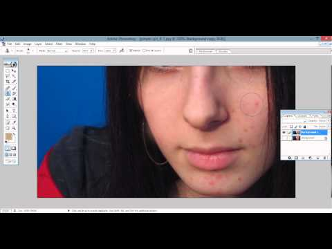 How to remove pimples acne and wrinkles in photoshop cs5