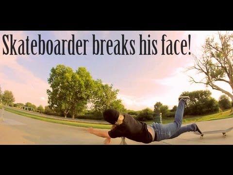 Skateboarder Breaks His Face!