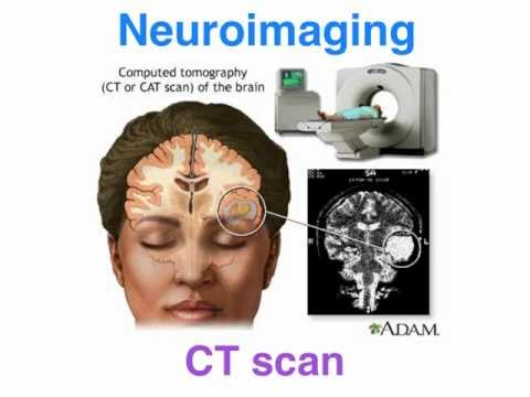 CT vs MRI - structural neuroimaging