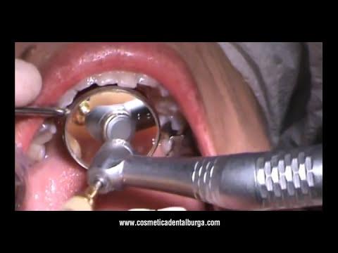 Problema estético, pérdida de diente anterior: Soluciones: Burga Perú.