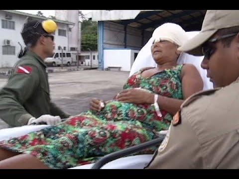 Entenda como acontecem acidentes de escalpelamento na Amazônia