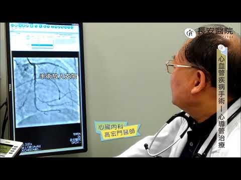 【 長安醫院健康線上】心臟內科主任 高宏門醫師 關於「心」問題 高醫師告訴您(下集)