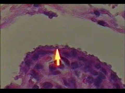 Cryptosporidium parvum-infected tissues and fecal sample