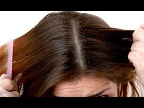 Hair fall and Dandruff | Remedies and Solution For Hair Loss : TV5 News Photos,Hair fall and Dandruff | Remedies and Solution For Hair Loss : TV5 News Images,Hair fall and Dandruff | Remedies and Solution For Hair Loss : TV5 News Pics