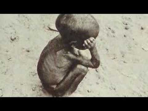 Millennium Development Goal 4 - Reduce Child Mortality