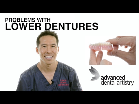 Problems with Lower Dentures & False Teeth