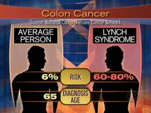 Colon Cancer Genetic Testing