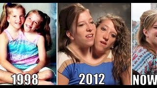 Interesting Things About Famous Conjoined Twins Abby And Brittany Hensel