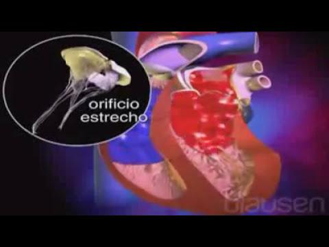 Válvulas Cardíacas.flv