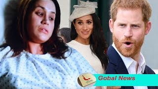 Royal shock: Meghan has made this change to her hair because  'extreme pain' due to cancer