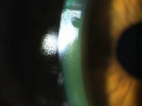 Rigid contact lens (RGP) surface drying out due to