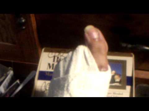 Toe amputee Pretending Video