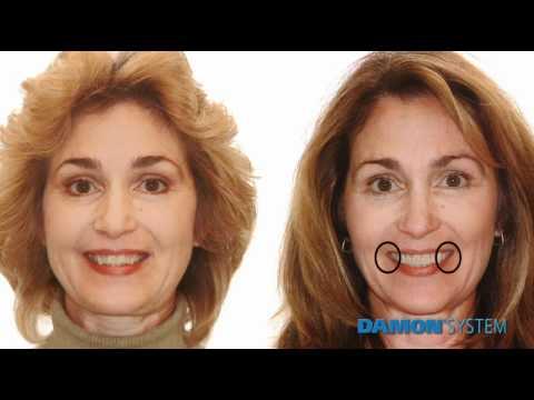 Why Choose Damon Braces- Damon System Dentist in Sydney Australia call 02 9659 1200