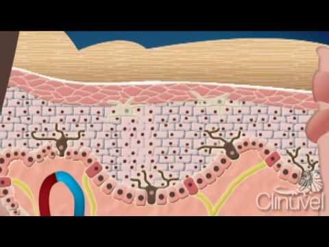 What is skin The layers of human skin YouTube