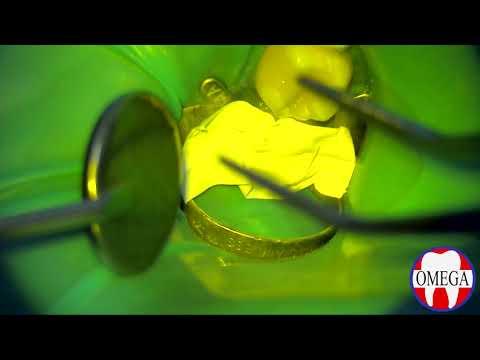 Лечение кариеса с помощью окклюзионного шаблона.