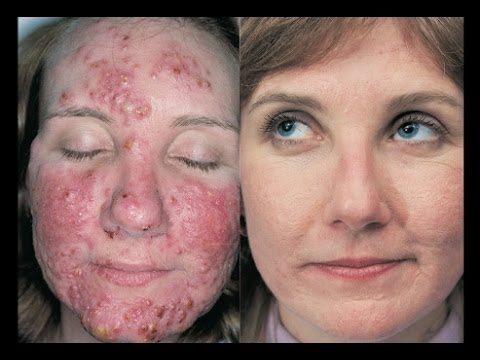 What is Acne What Causes Acne How to Get Rid of Acne