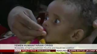 UNICEF Deputy representative to Yemen, Dr  Sherin Interviewed by BBC World New